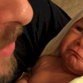 recién nacido enfermo icteria